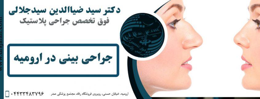 جراحی بینی در ارومیه