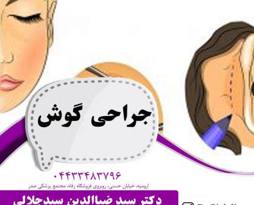 جراحی گوش در ارومیه | اتوپلاستی در ارومیه
