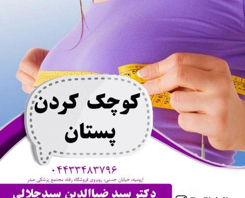 کوچک کردن پستان در ارومیه