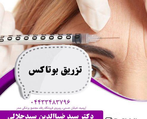 تزریق بوتاکس در ارومیه