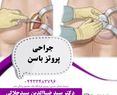 جراحی پروتز باسن در ارومیه