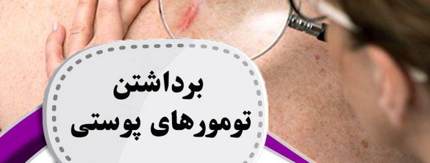 برداشتن-تومورهای-پوستی